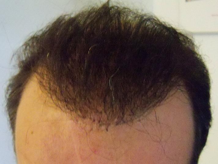 Résultat 6 mois suivant une greffe de cheveux.