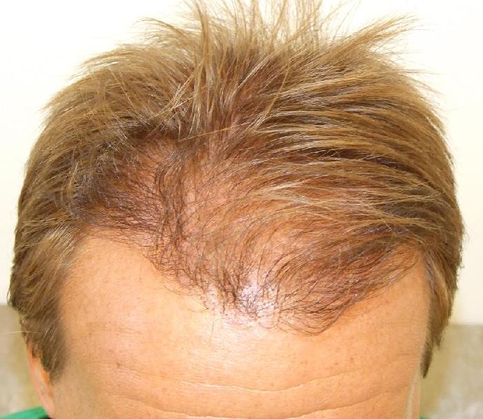 Résultat d'une greffe de cheveux. (7 mois apres l'intervention).