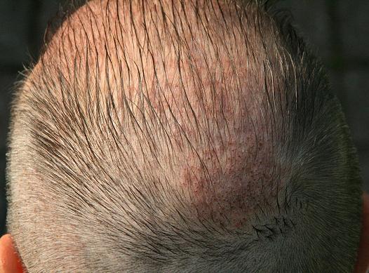 1 semaine apres greffe cheveux