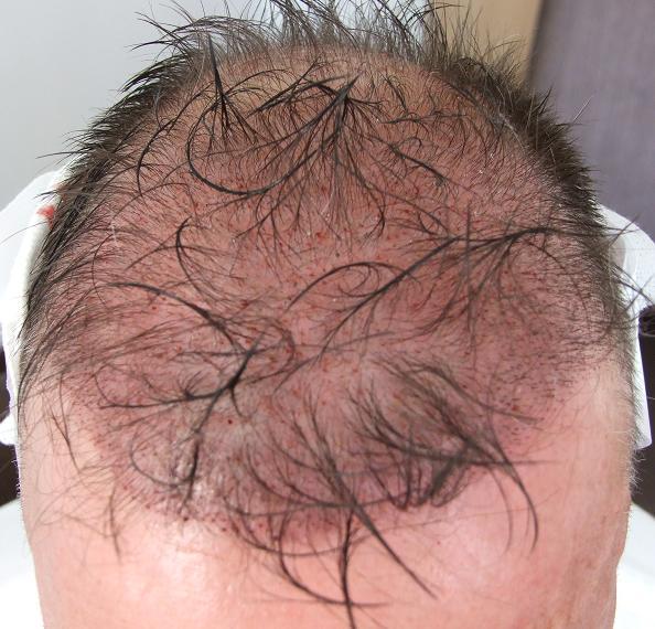 apres greffe de cheveux