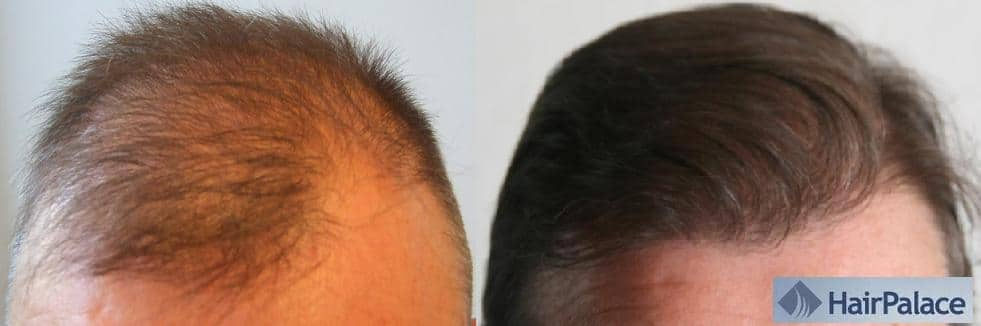 avant apres implant capillaire fue hairpalacet