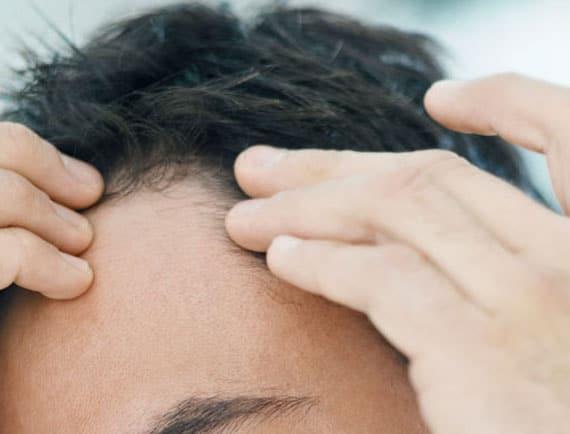 Microgreffes pour les cheveux denses.