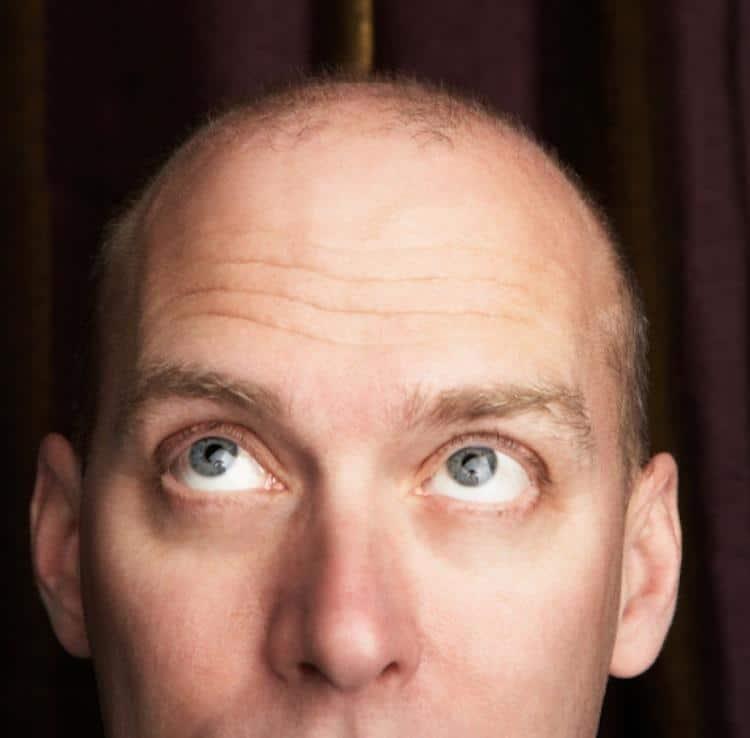 Perte des cheveux solution la microgreffe for Perte de cheveux homme