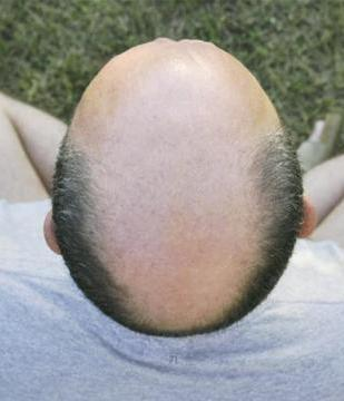 Comment peut-on accélerer la repousse des cheveux des hommes?