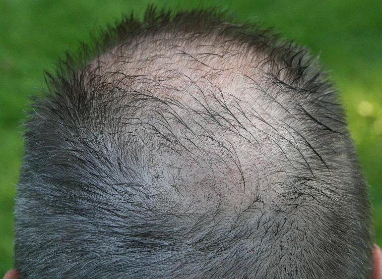 resultat 3 semaines apres greffe capillaire