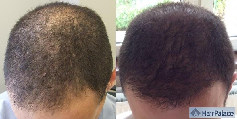 avant apres implant capillaire hairpalace resultat