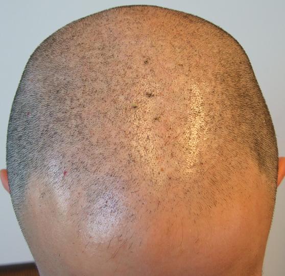Patient avant la greffe de cheveux a la clinique.