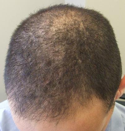 Tete du patient avant l'opération de greffe de cheveux.