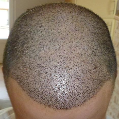 Resultat 1 semaine apres la greffe de cheveux.