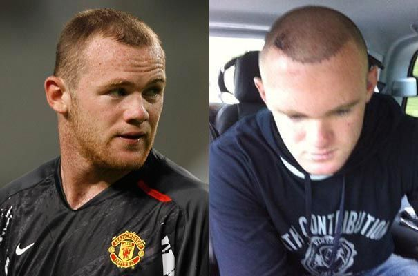wayne rooney s est succomb la greffe de cheveux nouveau. Black Bedroom Furniture Sets. Home Design Ideas