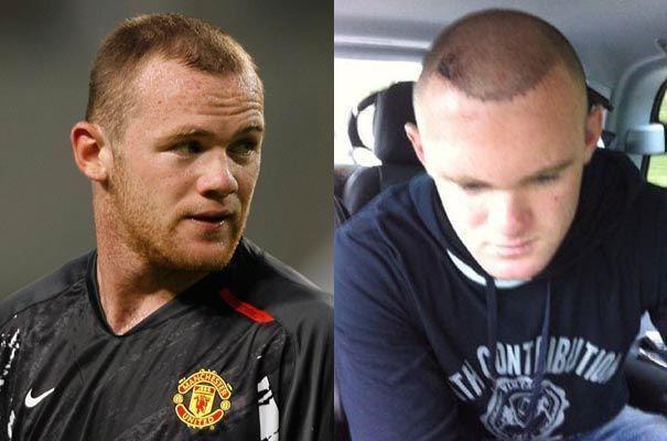 Nouvelle greffe de cheveux de Rooney.