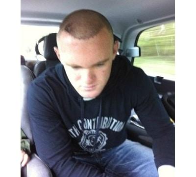 La premiere greffe de cheveux de Wayne Rooney.