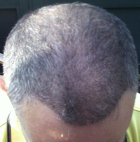 Tete 1 semaine apres un implant capillaire chez HairPalace.