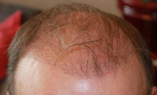 Photo prise 3 mois apres la greffe de cheveux.