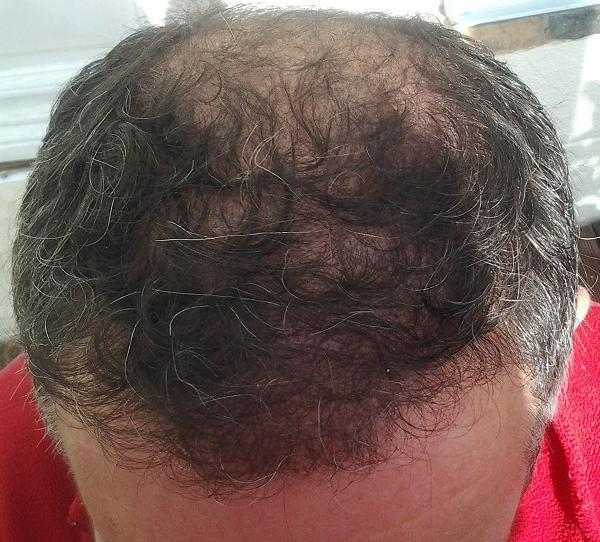 Résultat 6 mois apres une greffe de cheveux FUE.