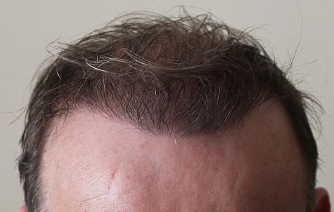 Résultat d'implant capillaire de 6 mois.