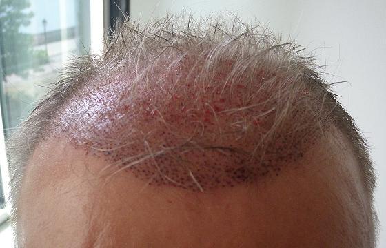 Photo prise apres la greffe de cheveux en Hongrie.