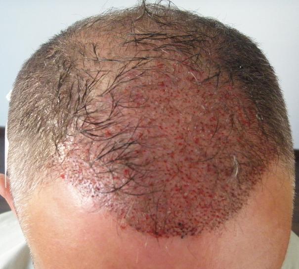 Photo prise apres la greffe de cheveux chez HairPalace