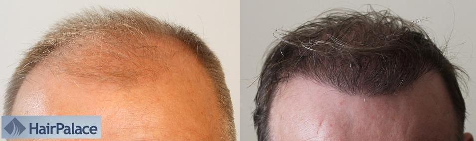 Résultat de greffe de cheveux chez HairPalace.