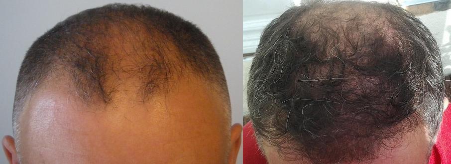Image avant et apres d'une greffe de cheveux - meilleurs résultats!