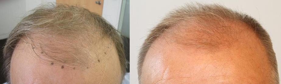 Deux photos prises avant la greffe de cheveux en Hongrie.