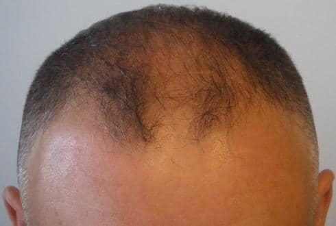 Patient avant la greffe de cheveux chez HairPalace