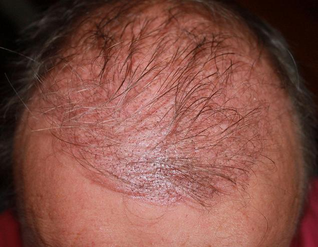 Résultat 3 semaines apres l'implant capillaire.