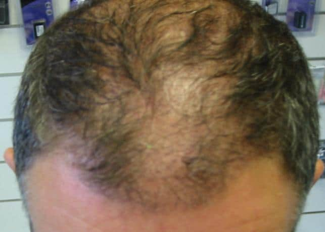 Résultat de 3 mois apres l'implant capillaire.