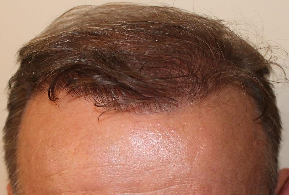 resultat greffe de cheveux hairpalace 1 annee