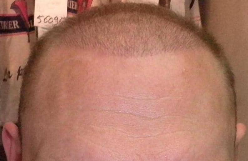 1 semaine apres la greffe de cheveux