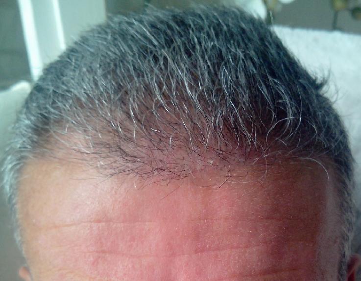 3 semaines apres implant capillaire