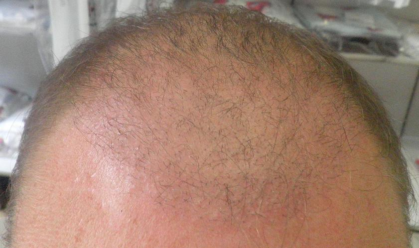 3 semaines suivant l'implant capillaire.