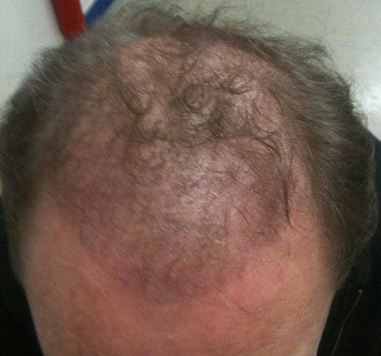 apres 3 mois greffe de cheveux