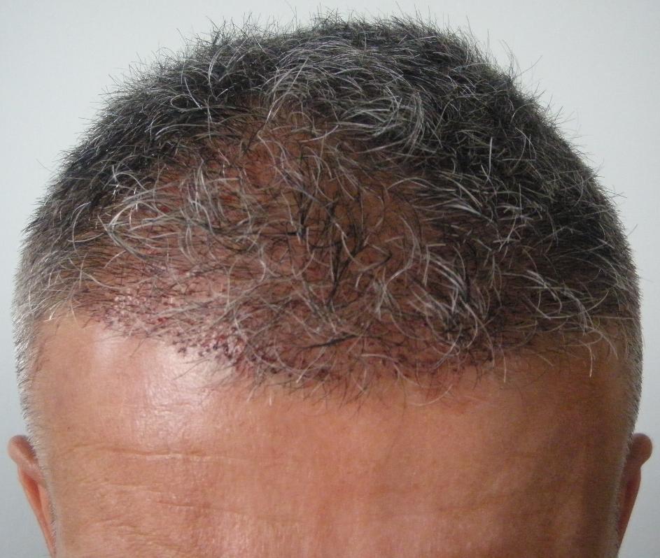 Photo prise apres de greffe de cheveux chez HairPalace