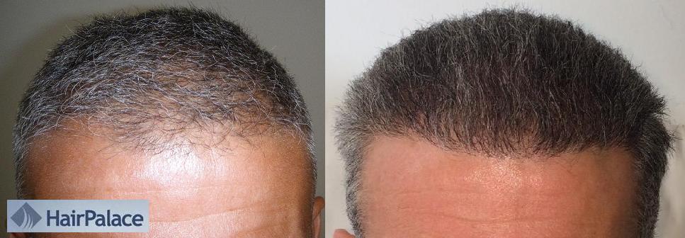Photos avant et apres d'implant capillaire en Hongrie - résultat de 6 mois