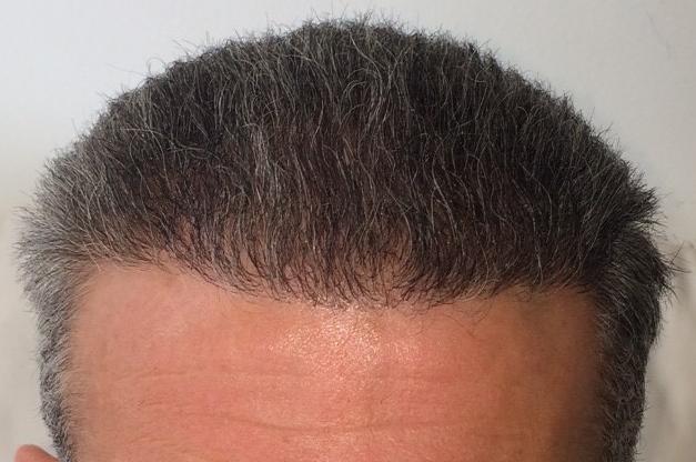 photo 6 mois apres greffe cheveux