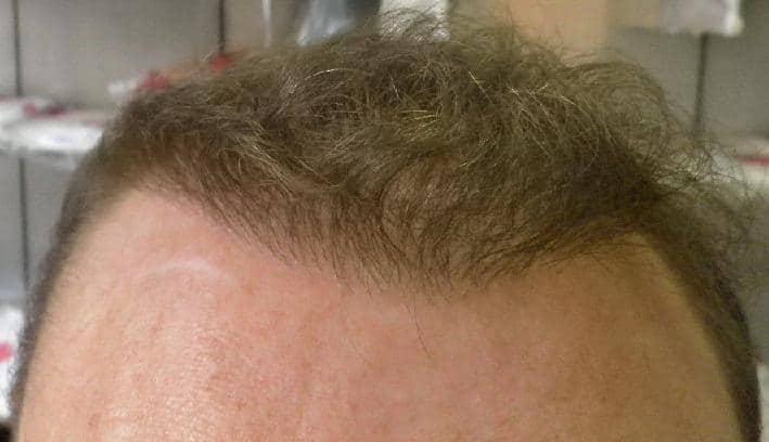 resultat 6 mois apres greffe de cheveux fue safe
