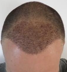 1 semaine apres greffe de cheveux