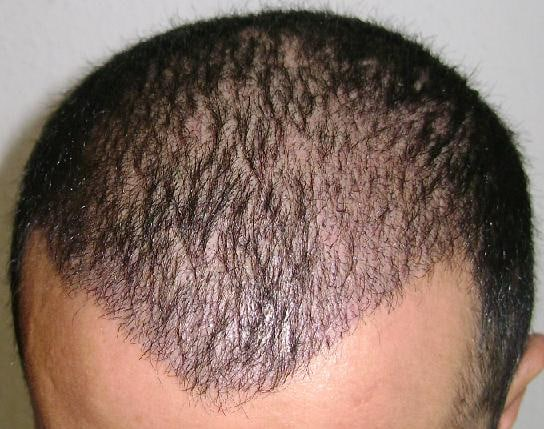 2 semaines apres greffe de cheveux