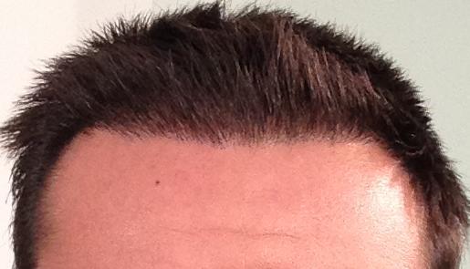 3 mois apres greffe de cheveux fue resultat