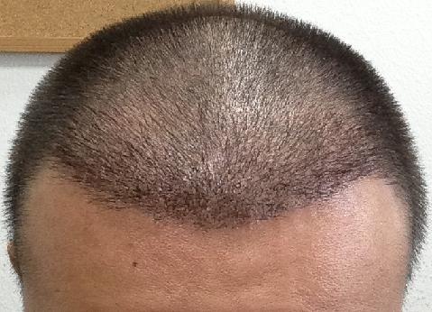 3 semaines apres greffe cheveux