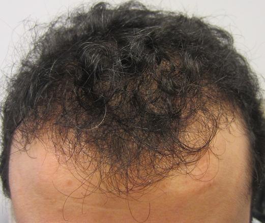 6 mois apres greffe de cheveux fue resultat