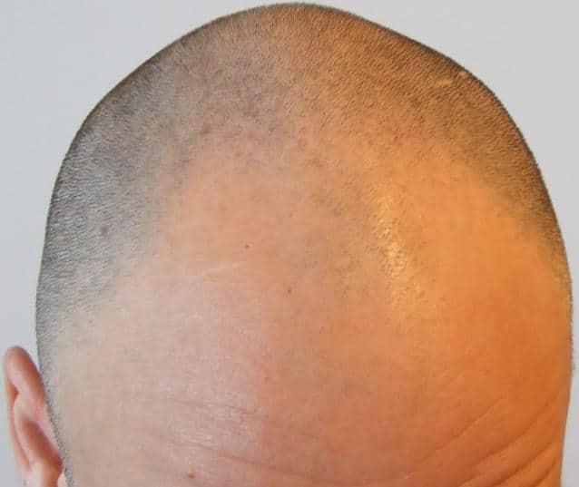 avant greffe de cheveux clinique