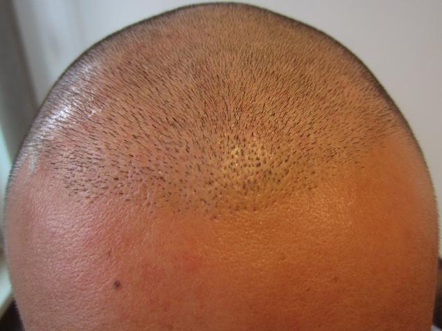 avant intervention greffe capillaire