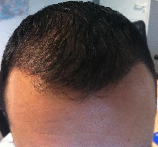 controle greffe de cheveux 3 semaines