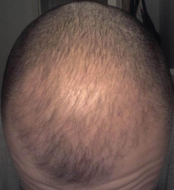 3 mois greffe de cheveux resultat