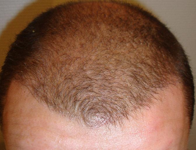 3 semaines apres implant cheveux