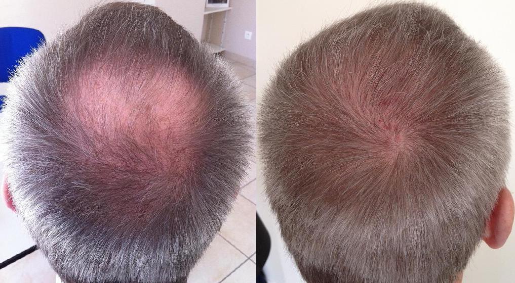 avant apres resultat greffe de cheveux
