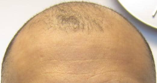avant greffe de cheveux