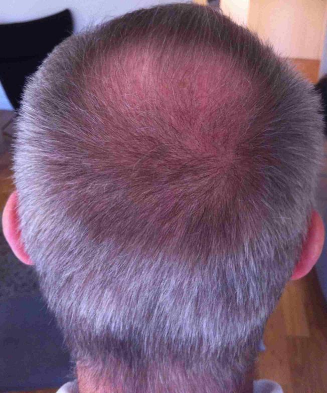 greffe de cheveux 3 mois